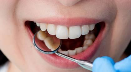 لمینت و بلیچینگ دندان برای چه افرادی توصیه می شود ؟