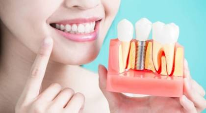 ایمپلنت دندان چیست + روند جراحی ایمپلنت دندان